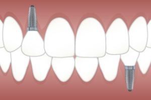 teeth implants Kirby TX