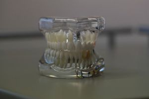 cost of dentures San Antonio