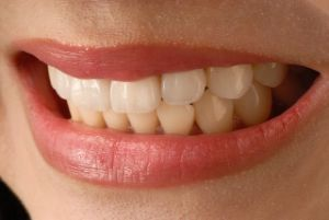 veneers in San Antonio Texas